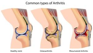arthritis | Osteoarthritis