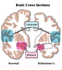 AD_brain